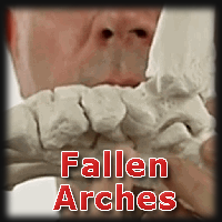 image for fallen arche pain