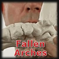 image for fallen arche pain