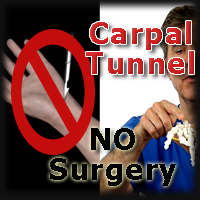 Carpal Tunnel Image
